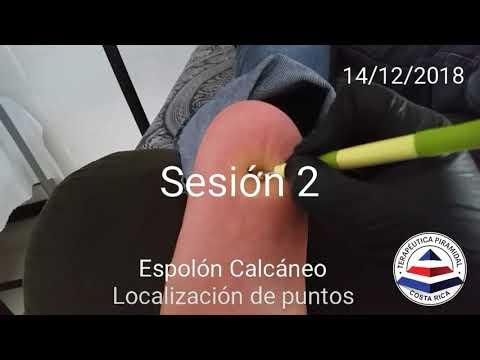 Tratamiento De Espolón Calcáneo, Sesión 2