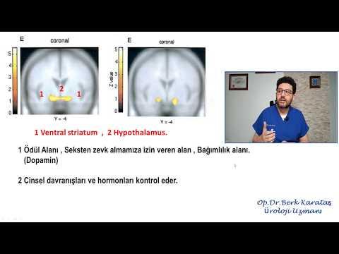 Erotik Film İzlerken Kadın-Erkek Beyninin Farklılıkları (MR Görüntüleri)