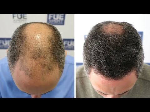 FUE Hair Transplant (3268 Grafts in NW V-VI) Dr. Juan Couto - FUEXPERT CLINIC- Madrid, Spain