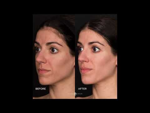 Acne Scar Treatment Dermatologist | RevePeel for Acne Scar | RevePeel Before After | Dr. Jason Emer