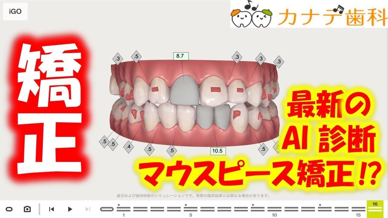 上尾市の歯医者が解説する矯正歯科。最新のAI診断が可能のマウスピース矯正