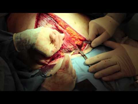 Live Surgery: Vertical Rectus Abdominis Muscle Flap (VRAM) for Sternal Wound