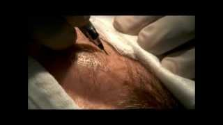 Hair Transplant Surgery Performed Bosley Clinic And After