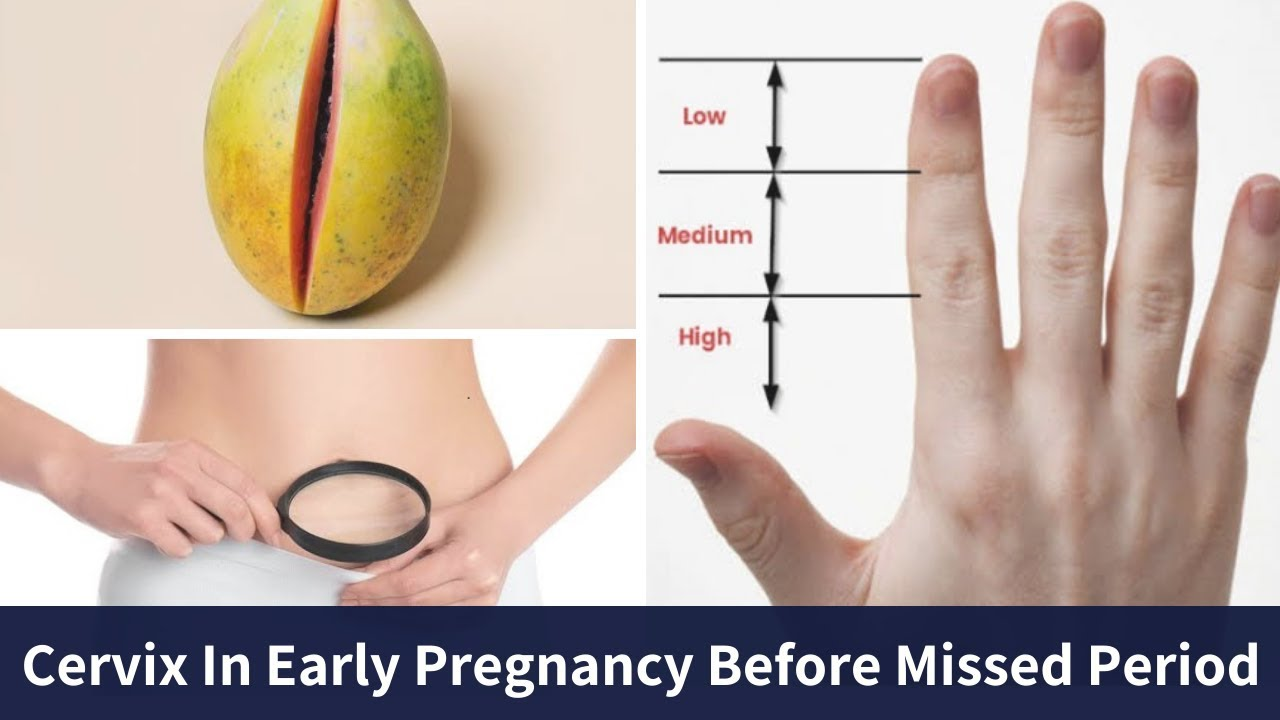 What Is The Position Of Cervix In Early Pregnancy Before Missed