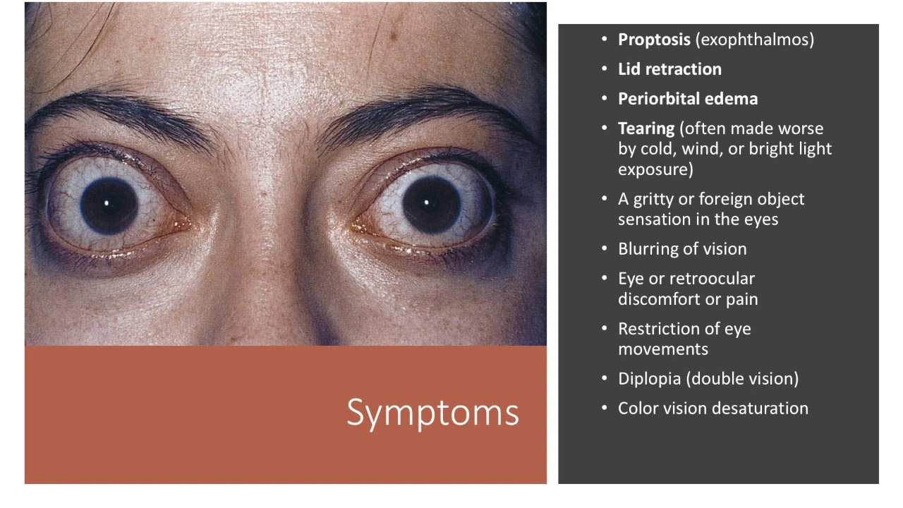 Thyroid Eye Disease Youtube