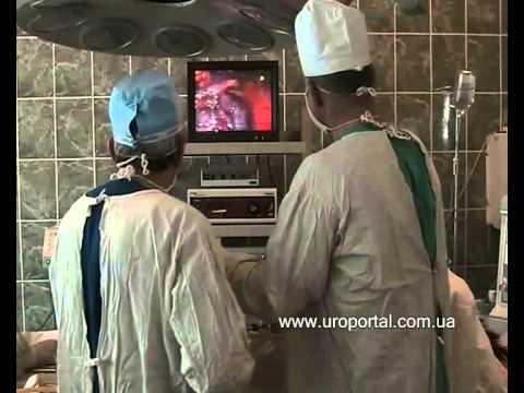 Удаление кисты почки (лапароскопическим методом) - YouTube