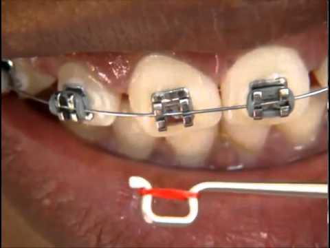 Trocando As Borrachinhas Do Aparelho Ortodontico Youtube