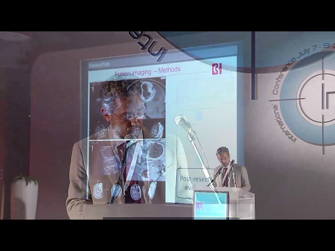 Fusion Imaging in Neurosurgery - Francesco Prada, MD