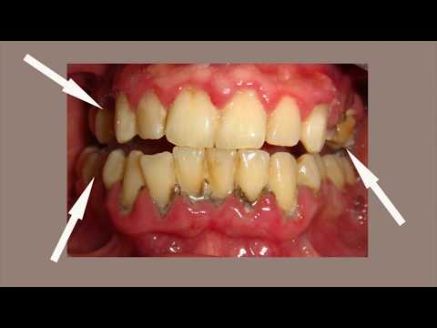 Periodontitis Treatment - Miracle Cure of Gum Disease and Periodontitis