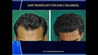 HAIR TRANSPLANT IN KERALA @ COCHIN Thumbnail