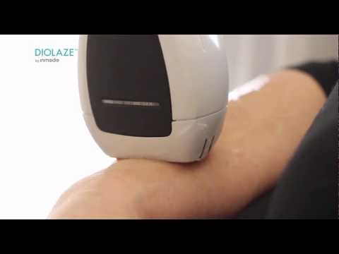 Diolaze Laser Hair Removal