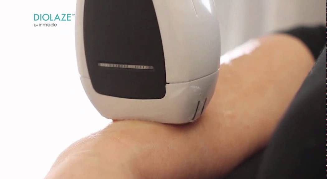 Why you need multiple laser sessions for optimal laser hair removal results