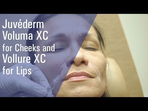 Juvéderm Voluma XC for Cheeks and Vollure XC for Lips at ZO Skin Centre