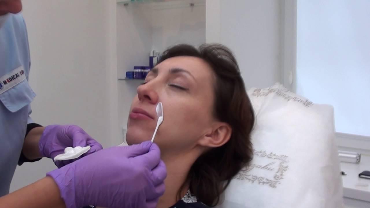 Дешевые аптечные мази от морщин - YouTube