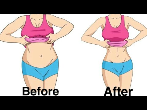 How to lose weight fast without exercise and diet