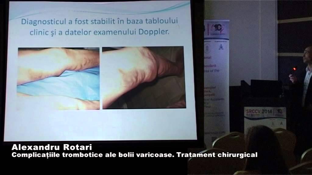 etapa de decompensare varicoză injectarea în vene varicoase ale extremităților inferioare