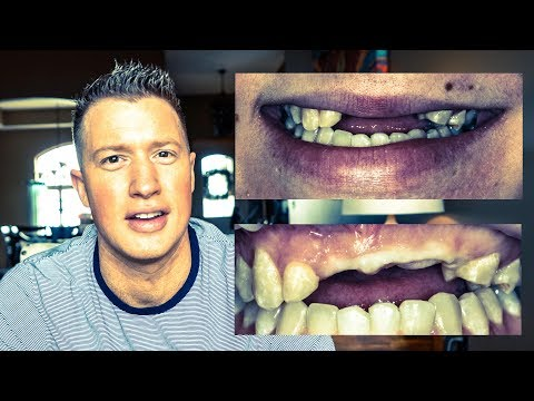 ATV WRECK leaves lady TOOTHLESS! COSMETIC DENTISTRY DENTAL IMPLANTS & VENEERS (EP 2 SMILE MAKEOVER)