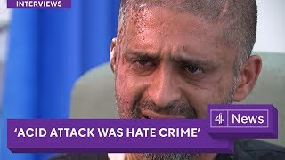 'Acid attack was a hate crime': London victim speaks out