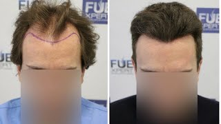 Download lagu FUE Hair Transplant (3251 Grafts Norwood IV A) By Dr Juan Couto - FUEXPERT CLINIC, Madrid, Spain
