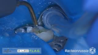 Ирригация корневого канала 3.6 и активация ультразвуком (Acteon 007 4K B) - Апокин А.Д.