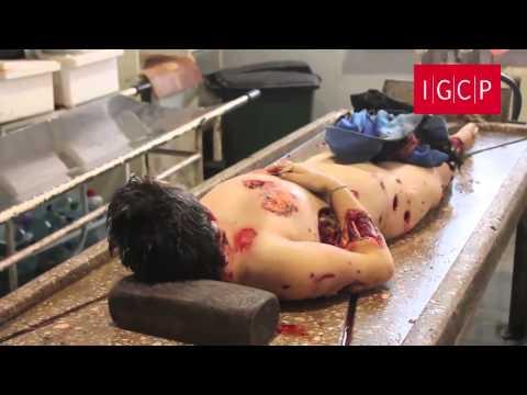 IGCP. Дети - жертвы обстрела 63 школы. 6 ноября Донецк. 18+