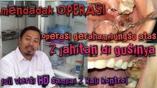 Operasi Gigi Bungsu Impacteed Teeth| Share Pengalaman pribadi.