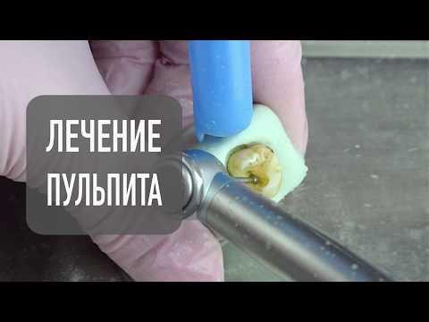 Лечение пульпита часть 1 | стоматология в Самаре