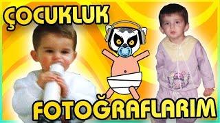 BEN KÜÇÜKKEN SARIŞINDIM! - Çocukluk Fotoğraflarım