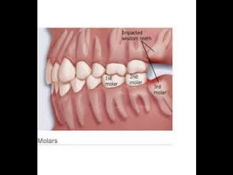 images of a healing tooth extraction
