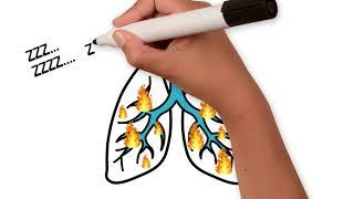 Comment les poumons réagissent au Coronavirus de la maladie Covid-19 ?