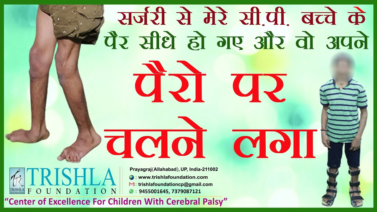 CP child started walking after 15 year of age: unbelievable even in the eye of parents