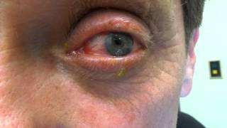 ruptured globe eye injuries - 320×180