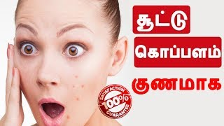 சூட்டு கொப்பளம் குணமாக | Heat Boils tips in Tamil