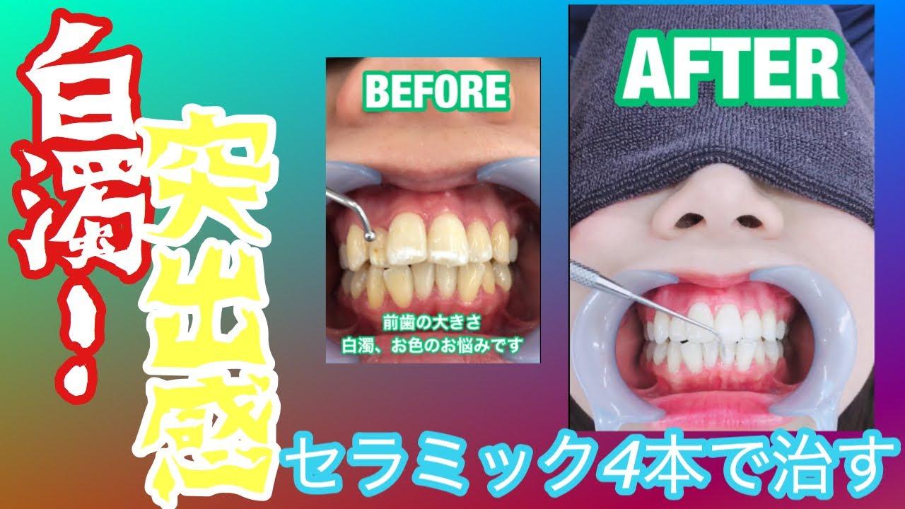 化 歯医者 フッ 水素