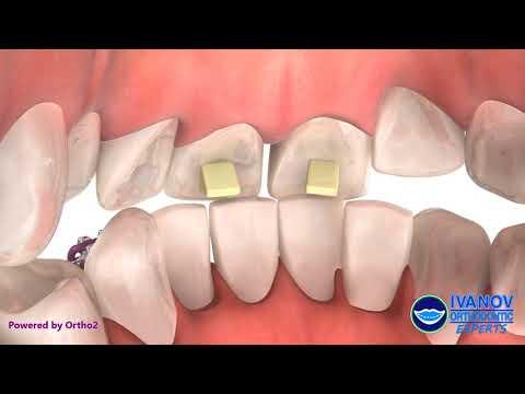 Orthodontic Dental Bite Turbos | Bite Ramps | Bite Block Braces