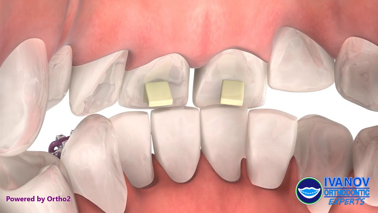 Orthodontic Dental Bite Turbos | Bite Ramps | Bite Block Braces Near Me