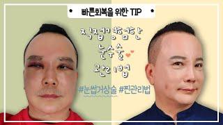 눈수술 해본 닥터박이 알려주는 눈수술후 주의사항 및 관…