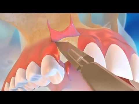 prothesiste dentaire en tunisie 13 janv 2012 de ces dernières années, nos possibilités se sont multipliées concernant la pose de l'implant dentaire en algérie par exemple, les cliniques dentaires qui ne reçoivent que de patients européens ne cessent de se multiplier, mais on peut partir pour le maroc, la tunisie, la hongrie ou la bulgarie aussi.