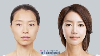 [id hospital review korean plastic surgery] amazing makeover show, Let Me In hospital