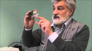 видео Коагулограмма