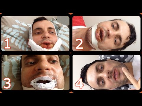 Моя ортогнатическая операция | My jaw orthognathic surgery #1