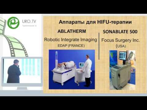 Уренков С Б - HIFU терапия в лечении рака простаты
