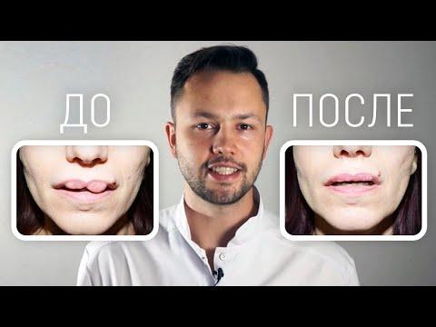 Как удалить филлер из губ