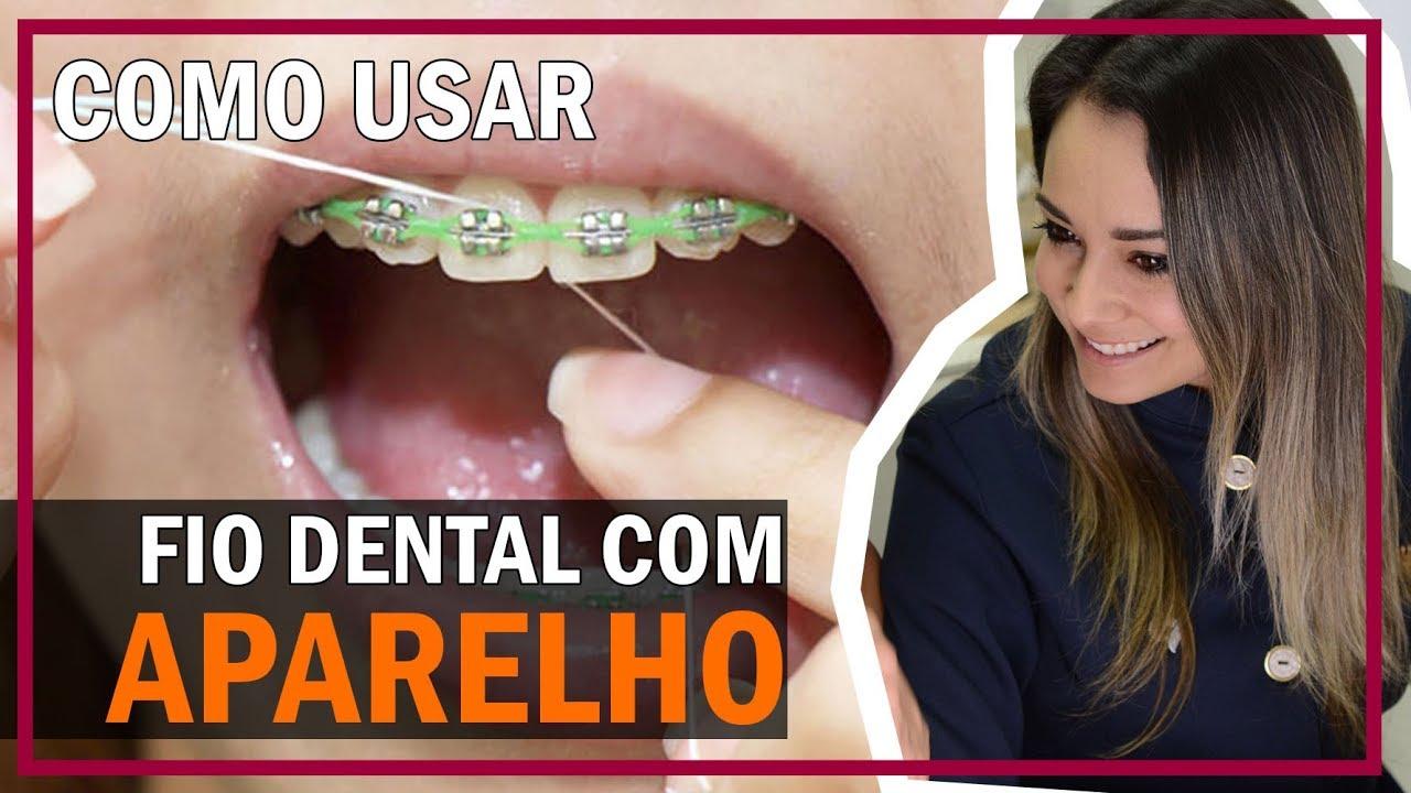 65f7ddc6a Fio dental com aparelho - Aprenda como usar. - YouTube