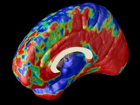 Imaging Alzheimer's in the Brain