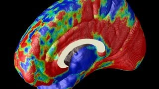 Imaging Alzheimer's in the Brain
