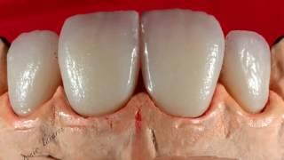 فيديو بناء اسنان أمامية e max