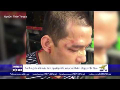 22/09/16 - PHÓNG SỰ VIỆT NAM: Công an đánh người đổ máu bên ngoài tòa phúc thẩm blogger Ba Sàm