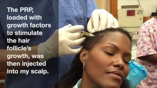 PRP Therapy for Female Hair Loss Raleigh NC