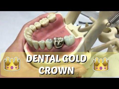 Dental Gold Crown + Dental School Vlog    Brittany Goes to Dental School
